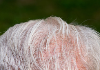 Hair thinning on senior man scalp