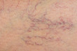varicose veins on the skin. Macro