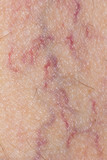 varicose veins on the skin. Macro poster