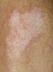 Vitiligo Spot on the Leg