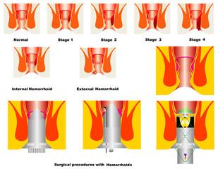 Hemorrhoids stage