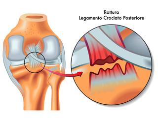 rottura legamento crociato posteriore