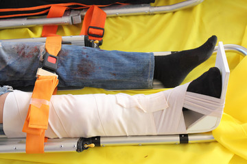 Leg With Splint