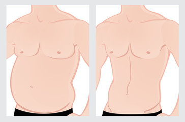 Male abdomen before and after treatment