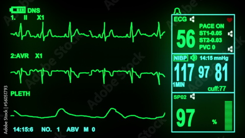 ECG monitor screen, hd, 1080p high definition, seamless loop
