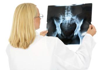 Weiblicher Arzt mit Röntgenbild