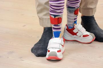 Kleinkind trägt Orthesen