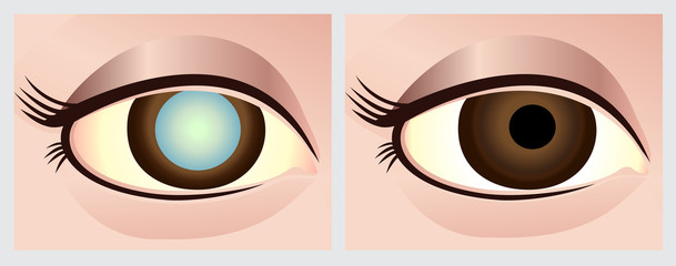 Cataract surgery.