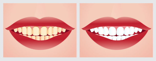 Teeth whitening before and after the treatment.