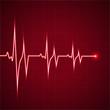 heart rhythm ekg