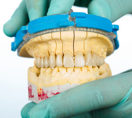 Porcelain teeth - dental bridge