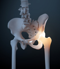 Hip and pelvis pain