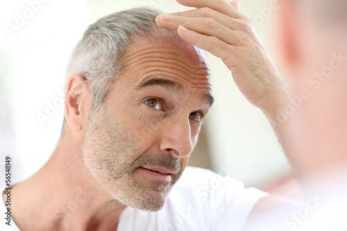 Leinwanddruck Bild Senior man and hair loss issue