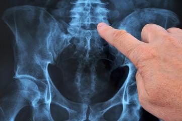 Radiographie du rachis dorso-lombaire