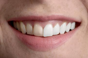 Hübsches Lächeln, Zahnpflege vorher/ nachher