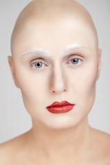 Glatzenmodel