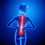 Female back pain in blue