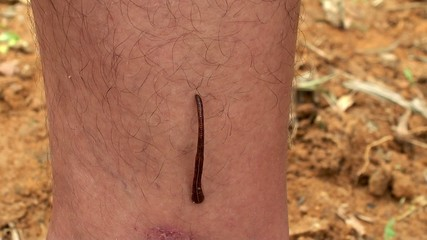 Jawed Land Leech attached to man's leg