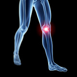 3d rendered illustration of a painful knee