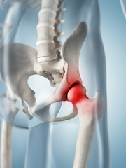 3d rendered illustration of a painful hip joint