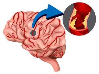 Blood Clot concept in the brain