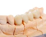 Teeth rehabilitation poster