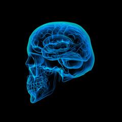 Human brain X ray - Skull X ray