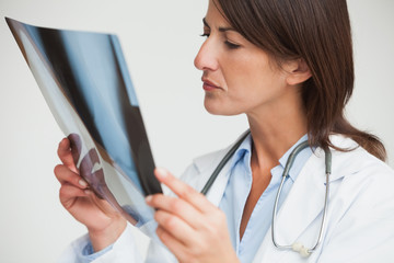 Female doctor studying x-ray