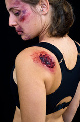 injured woman with open wound