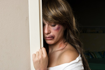 woman with bruises hiding behind wall