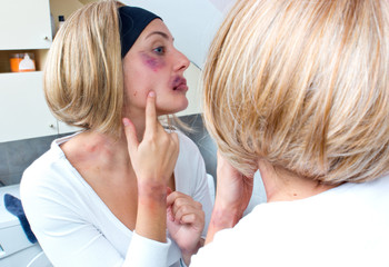 woman covered with bruises in front of the mirror