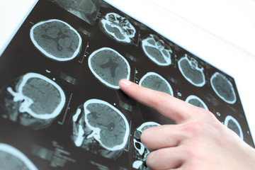 CT scan of the patient's brain and the hand of a doctor.