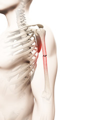 medical illustration of a borken arm bone