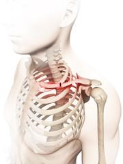 medical illustration of a broken clavicle
