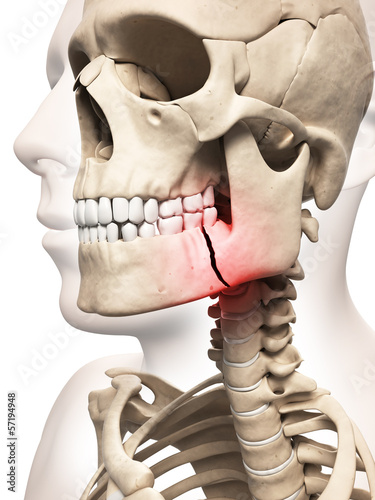 medical illustration of a broken jaw bone