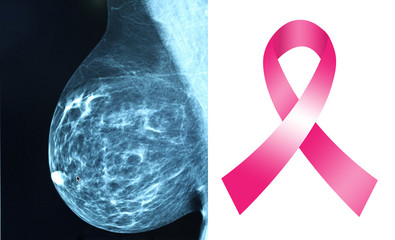 Pink ribbon for breast cancer awareness with mammogram image