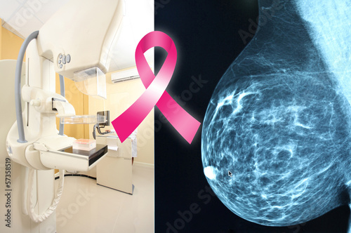 Pink ribbon for breast cancer awareness on mammogram image