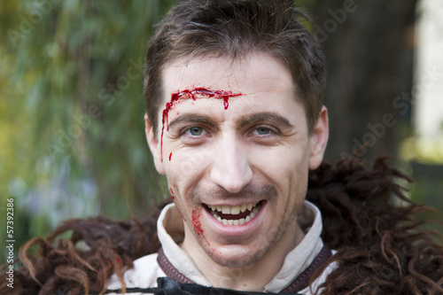 medieval injured peasant