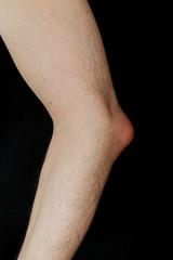 Olecranon bursitis, also known as student's elbow