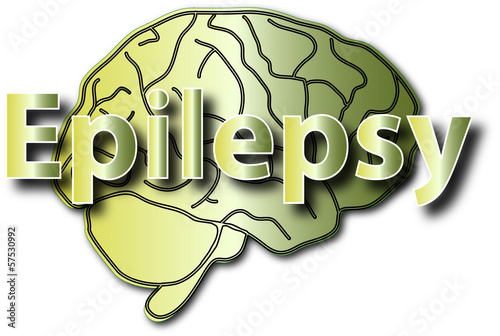 Epilepsy nerology brain health