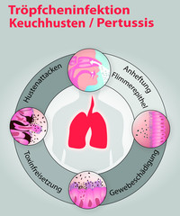 Keuchhusten_Pertussis_Infektion