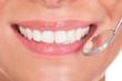Smiling woman with perfect white teeth
