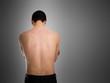 Acne, scars, keloids, skin disease