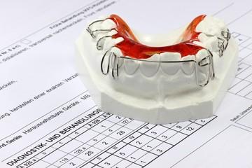 Zahnspange02