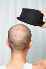 帽子をかぶる薄毛の男性