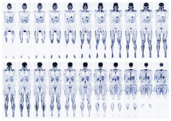 Scan the human body