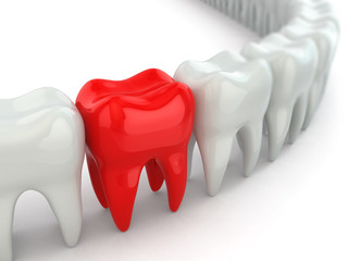 Aching tooth in row of healthy teeth.