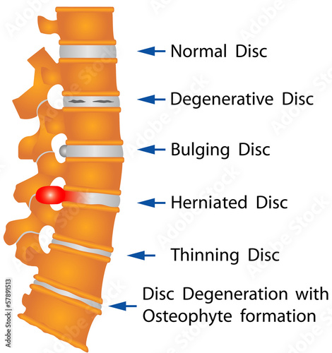 Spine. Spine conditions - 57891513