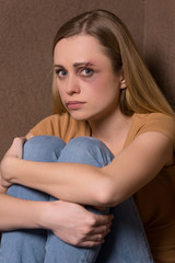 Portrait of scared woman with bruise on face.