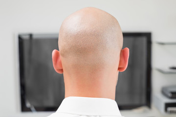 Extreme Close up of a bald man using computer